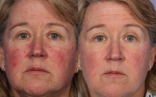 Азелаиновая кислота и ее действие на кожу