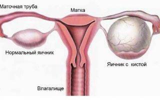 Эффективны ли свечи индометацин при кистах яичника