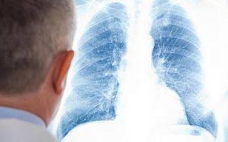 Пневмония без температуры: что это значит?