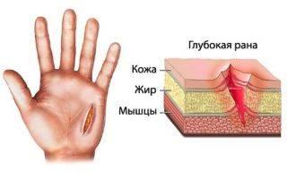 Чем остановить кровь после удаления зуба