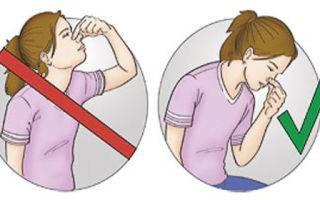 Что нельзя делать при носовом кровотечении