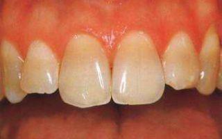 Как выглядят тетрациклиновые зубы и чем восстановить эмаль