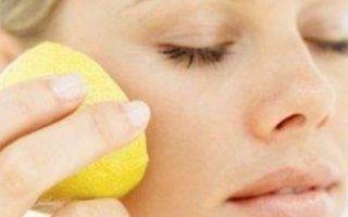 Методы лечения хлоазм на лице: салонные процедуры и народные средства