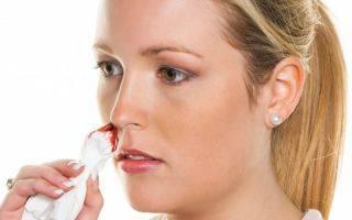 Кровь из носа при нормальном давлении причины
