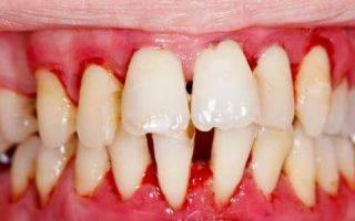 Техника массажа десен при пародонтозе, пародонтите и после удаления зубов