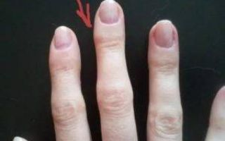 Сухие мозоли на руках: фото их типов и специфика лечения, советы, как убрать уплотнения на пальцах