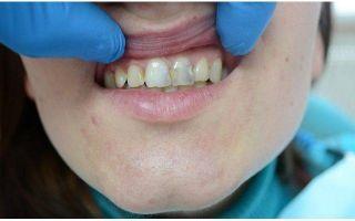 Как называются накладки на зубы