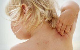 Симптомы и лечение герпеса во рту у ребенка