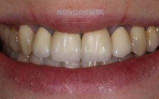 Травма зубов-диагностика и лечение