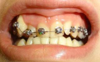 Ставят ли брекеты на одну из челюстей: можно ли установить их лишь на верхние либо только на нижние зубы?