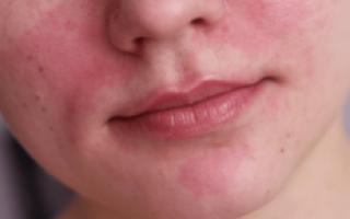Покраснение и чешется кожа на лице: как снять раздражение? разбираем эффективные методы