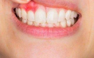 Отечность губ: основные причины и лечение
