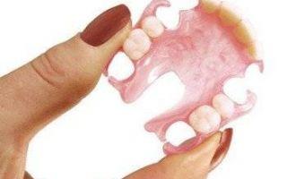 Бюгельный протез на нижнюю челюсть: фото, стоимость, мнения пациентов