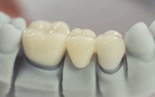Виды съёмных и не съёмных зубных протезов, их преимущества и недостатки