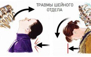 Почему болит шея спереди: основные причины