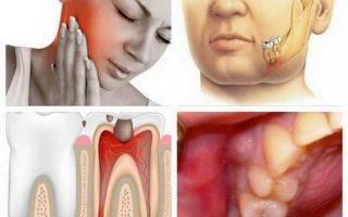 Флюс после удаления зуба что делать