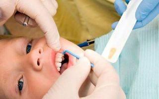 Фторирование зубов у детей с какого возраста