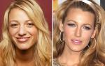 Звезды до и после пластики фото, ринопластика у знаменитостей