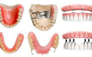 Частичный и полный съемный пластиночный протез для зубов