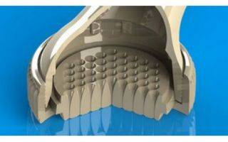 Спасает ли контрастный душ от целлюлита, плюсы и минусы процедуры