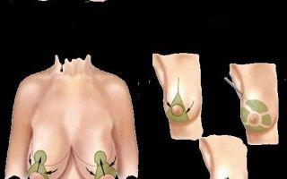 Гинекомастия у мужчин и подростков