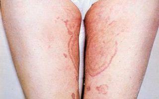 Жжение и зуд половых органов, промежности: признак зппп и других болезней