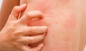 «Аллергия на жару» или тепловая крапивница: что это такое?