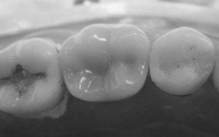 Эффективные методы профилактики кариеса зубов