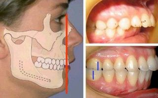 Признаки ортогнатического прикуса и характеристика ортогнатии челюсти