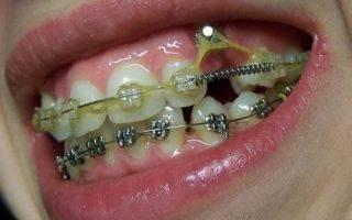 Шатается зуб в брекетах