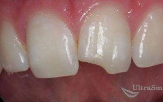 Красота, не требующая жертв: эстетическая реставрация винирами без обточки зубов