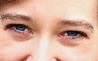 Синие мешки под глазами: причины и лечение