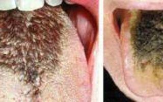 Черный язык симптомы какого заболевания?