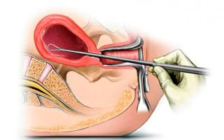 Субмукозная миома матки: операция или эма?