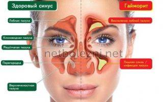 Медикаментозное лечение гайморита: какие препараты применяют при гайморите