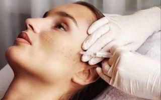 Гидроксиапатит кальция в косметологии филлер