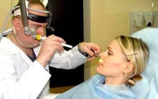Как вылечить нейровегетативный вазомоторный ринит
