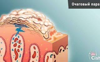 Паракератоз — это ороговение слизистого слоя шейки матки: причины, симптомы, диагностика и лечение