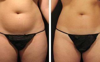 Прессотерапия для похудения: есть ли эффект, какой результат