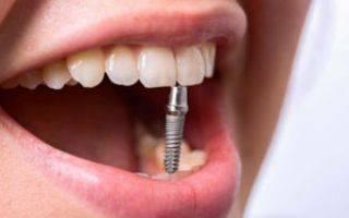 Срок службы зубных имплантов, на сколько лет их ставят