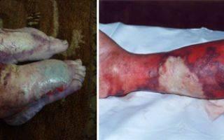 Рожистое воспаление (рожа) — причины, симптомы, диагностика и лечение