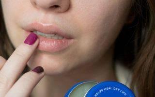 Какие причины развития и принципы лечения кандидоза полости рта?