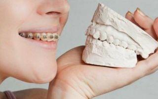 Что делать, если шатаются передние зубы и как их укрепить