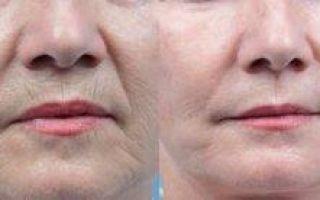 Как делается чистка лица лазером и когда она эффективна?