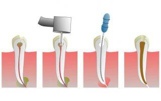 Лечение корневых каналов при пульпите и периодонтите