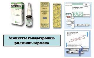 Эффективные лекарственные препараты при миоме матки