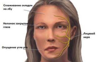 Симптомы, причины и лечение генитального герпеса у женщин