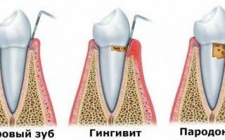 Травы для укрепления десен и зубов