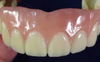 Использование микроимплантов в ортодонтии: сферы применения, отзывы