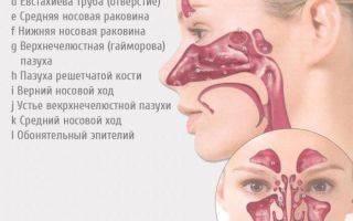 Как сделать так чтоб шла кровь из носа